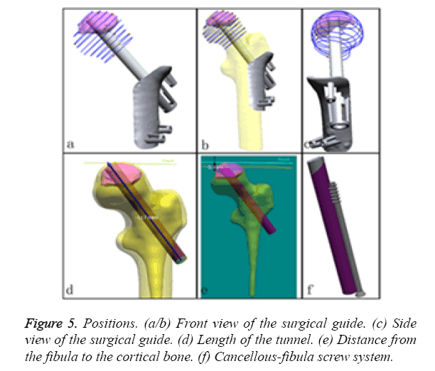 biomedres-screw-system