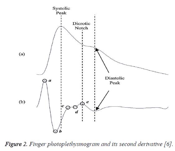 biomedres-second-derivative