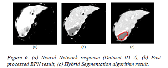biomedres-segmentation-algorithms