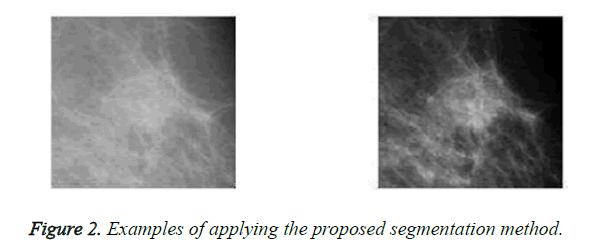 biomedres-segmentation-method