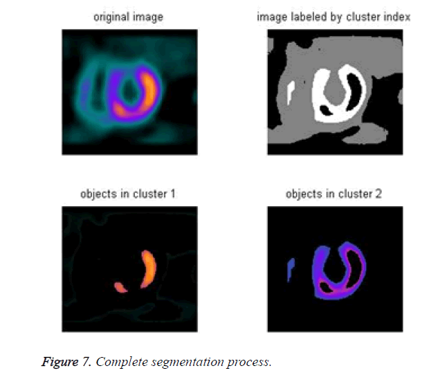biomedres-segmentation-process