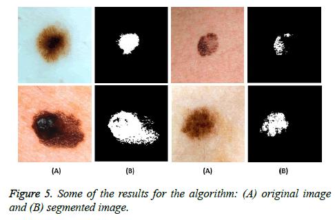 biomedres-segmented-image
