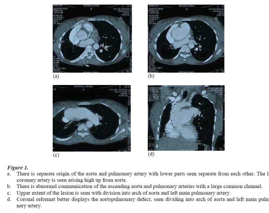 biomedres-separate-origin-aorta-pulmonary