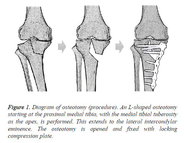 biomedres-shaped-osteotomy