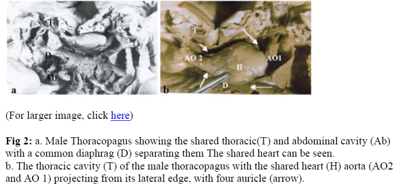 biomedres-shared-thoracic