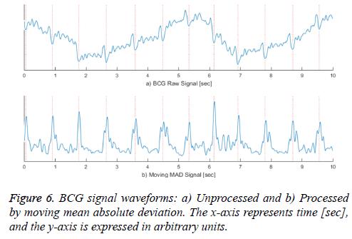biomedres-signal-waveforms