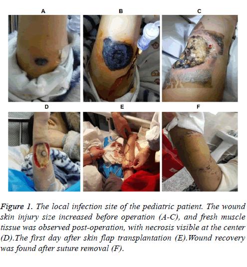 biomedres-skin-injury