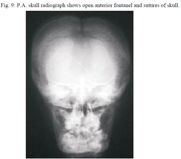 biomedres-skull-radiograph