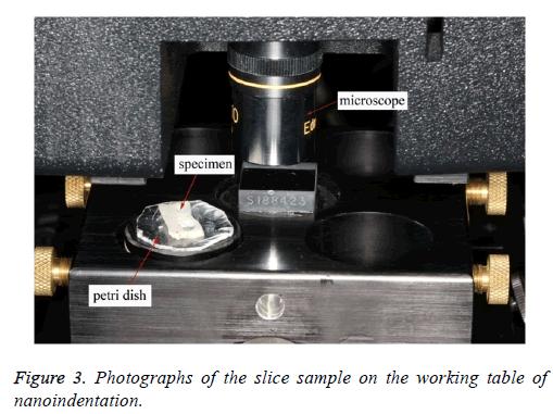 biomedres-slice-nanoindentation