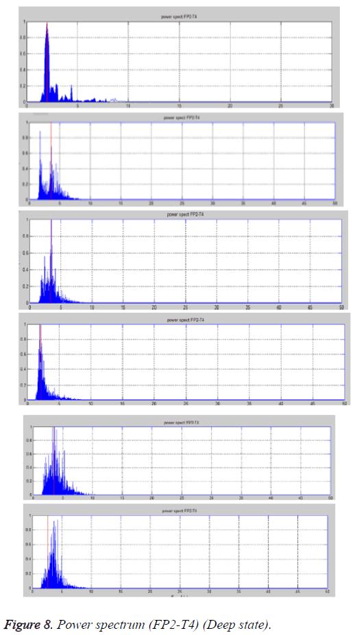 biomedres-spectrum-Deep-state