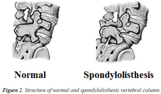 biomedres-spondylolisthesis-vertebral-column