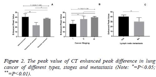 biomedres-stages-metastasis