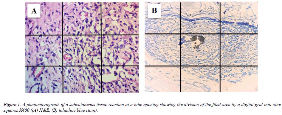 biomedres-subcutaneous-tissue