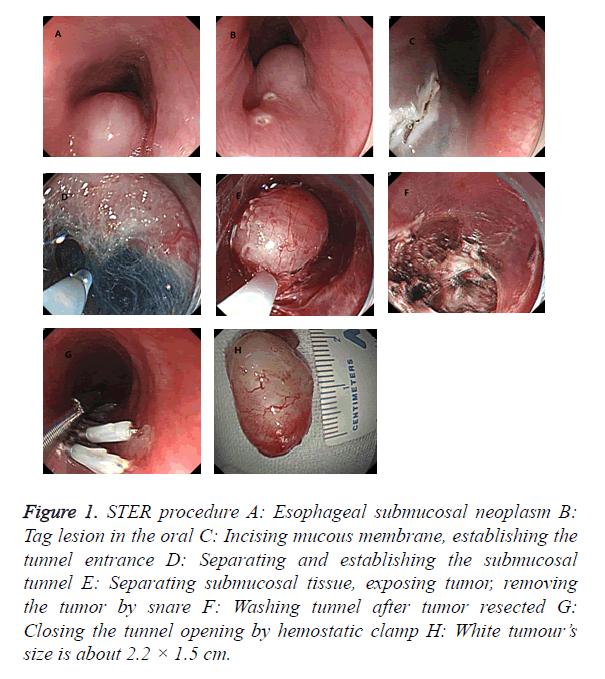 biomedres-submucosal-neoplasm