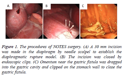 biomedres-surgery-needle