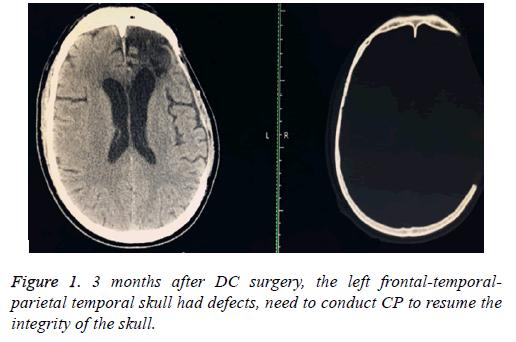 biomedres-temporal-skull