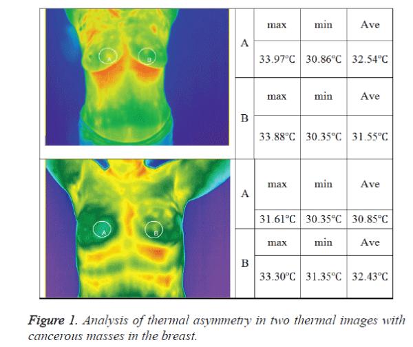 biomedres-thermal-asymmetry