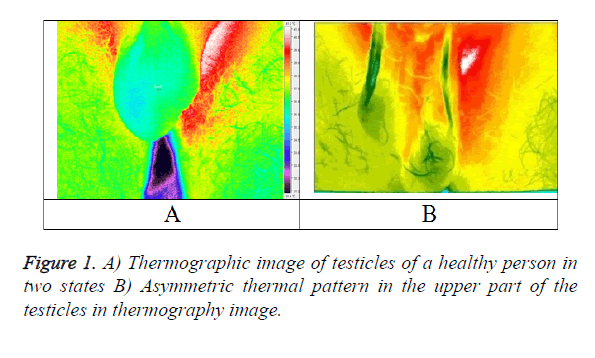 biomedres-thermography-image