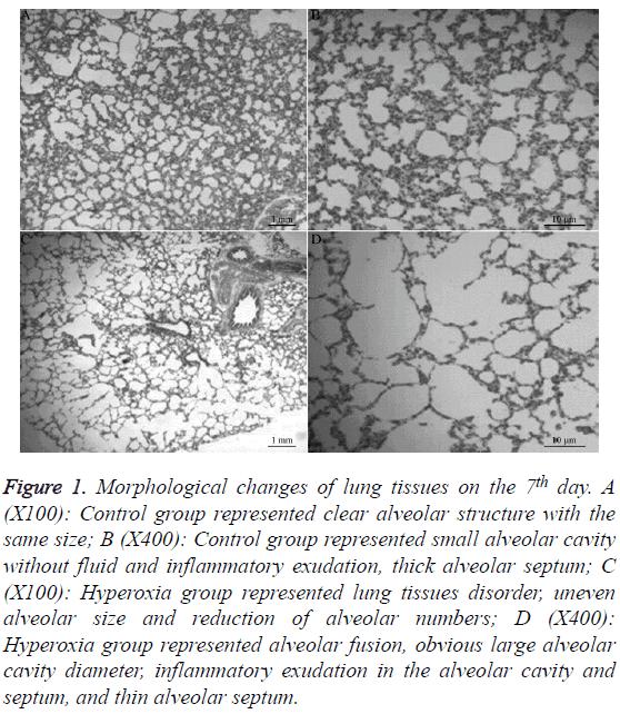 biomedres-thin-alveolar-septum