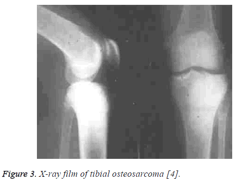 biomedres-tibial-osteosarcoma