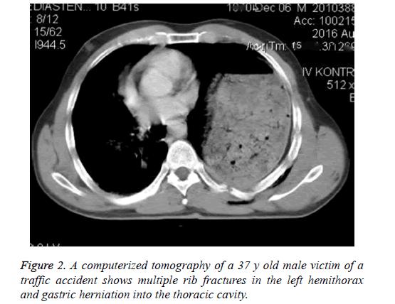 biomedres-tomography