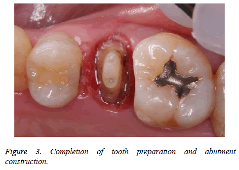 biomedres-tooth-preparation