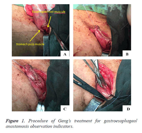 biomedres-treatment-gastroesophageal