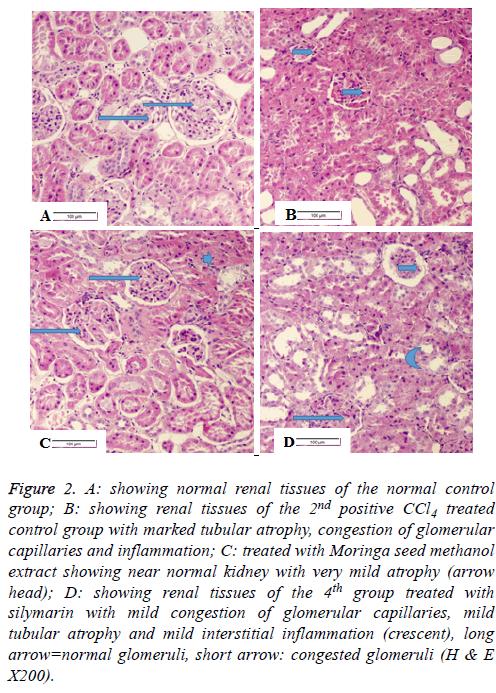 biomedres-tubular-atrophy