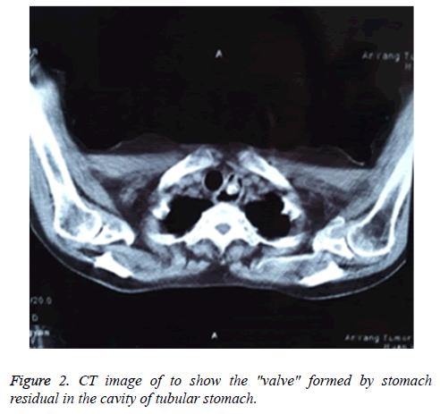 biomedres-tubular-stomach