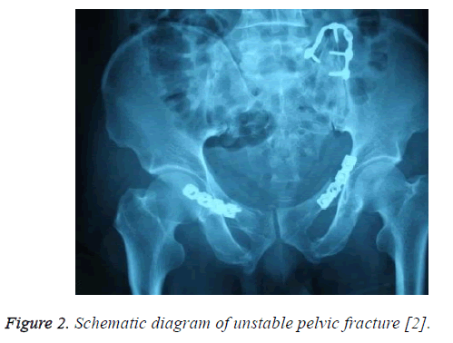 biomedres-unstable-pelvic-fracture
