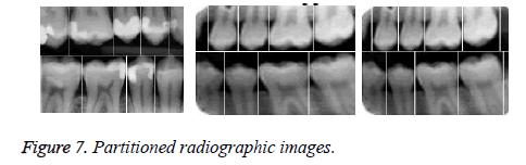 biomedres-upper-maxilla