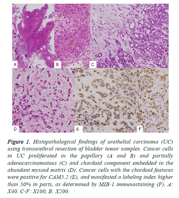 biomedres-urothelial-carcinoma