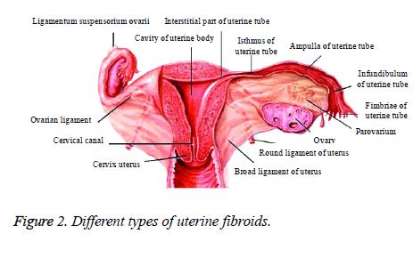 biomedres-uterine-fibroids