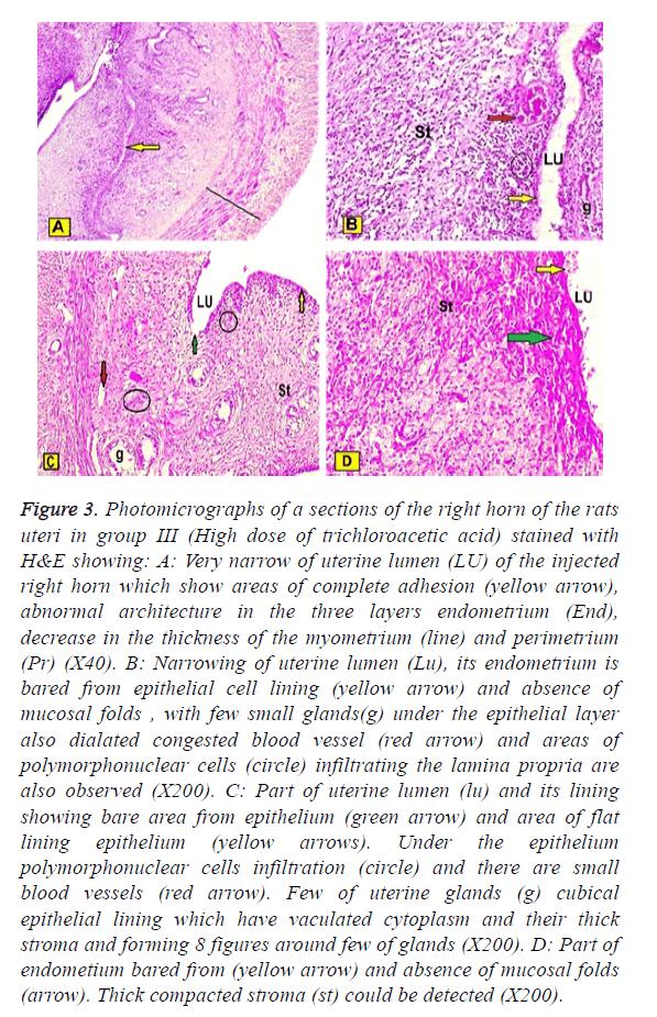 biomedres-uterine-lumen