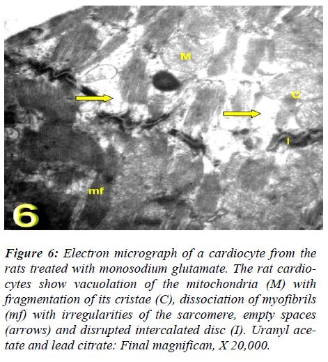 biomedres-vacuolation-mitochondria-cristae