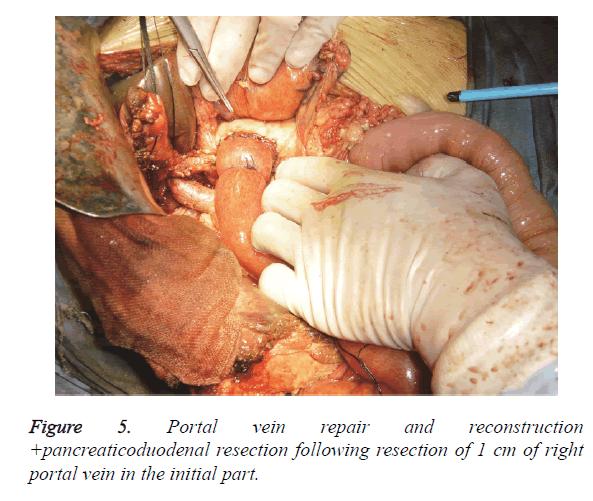 biomedres-vein-repair