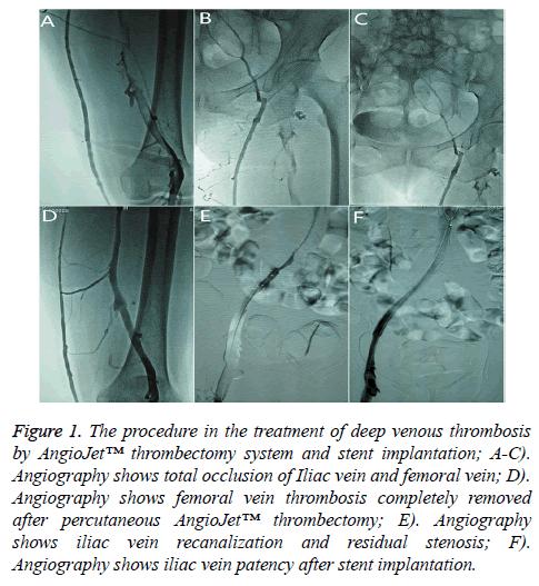 biomedres-venous-thrombosis
