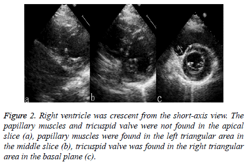 biomedres-ventricle-right