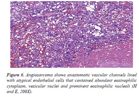 biomedres-vesicular-nuclei