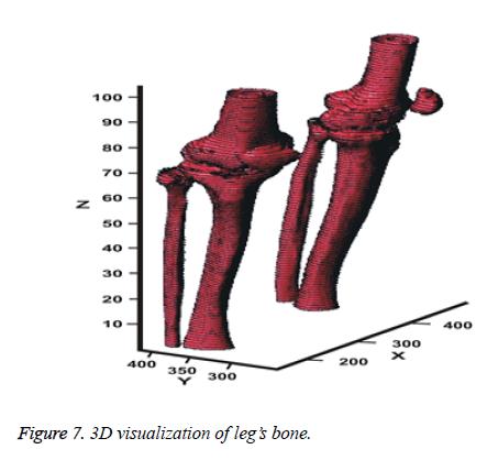 biomedres-visualization-bone