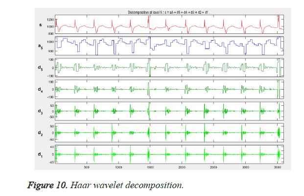 biomedres-wavelet-decomposition