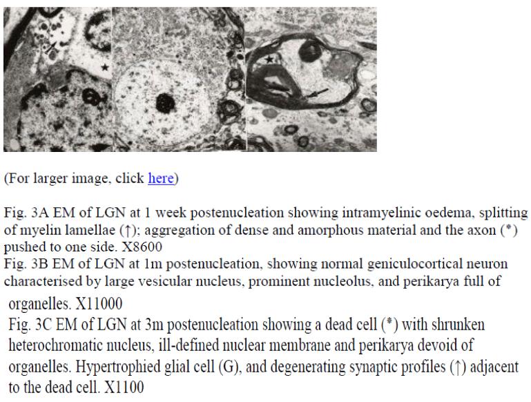 biomedres-week-postenucleation